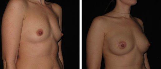 BA-breast1-1-1