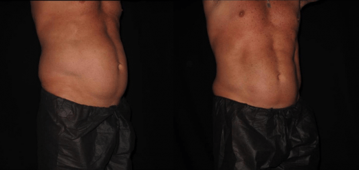 Smart Lipo Before & After