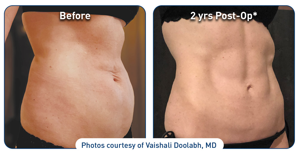 renuvion-before-after-abdominal-case-1-photos_right-side-72dpi.jpg